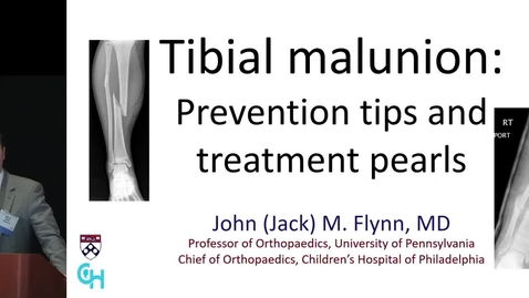 Thumbnail for entry Tibial Malunion: Prevention Tips and Treatment Pearls