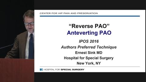 Thumbnail for entry Reverse PAO (Anteverting Periacetabular Osteotomy)