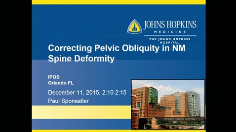 Thumbnail for entry Correcting Pelvic Obliquity in Neuromuscular Spine Deformity