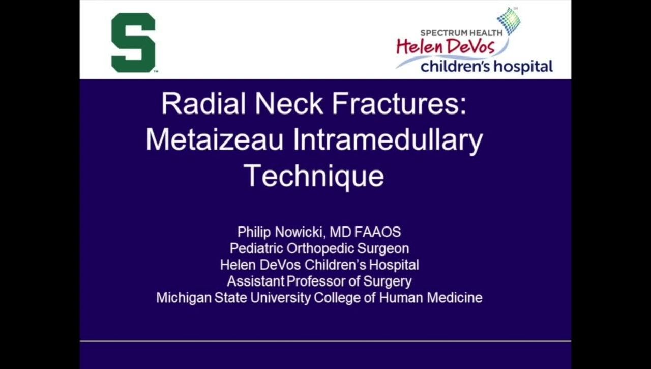 Video Abstract 7: Radial Neck Fractures: Metaizeau Intramedullary Technique
