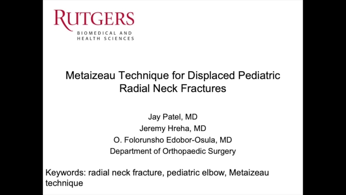 Video Abstract 9: The Metaizeau Technique For Displaced Pediatric Radial Neck Fractures