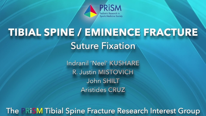 Video Abstract 6: Tibial Spine/Eminence Fracture – Suture Fixation