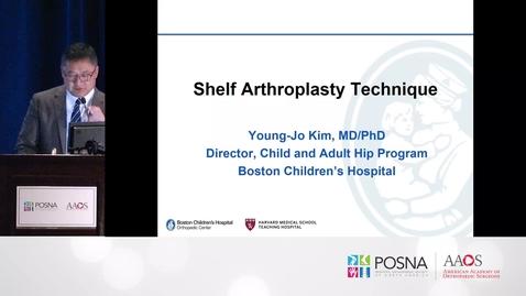 Thumbnail for entry Shelf Arthroplasty
