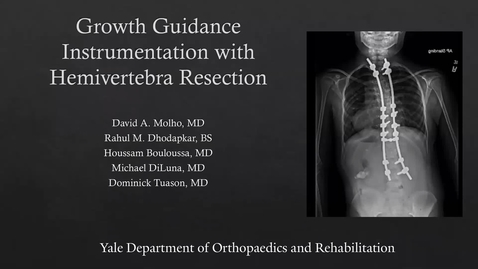 Thumbnail for entry Growth Guidance Instrumentation with Hemivertebra Resection