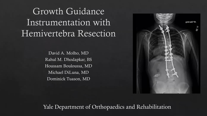 Growth Guidance Instrumentation with Hemivertebra Resection