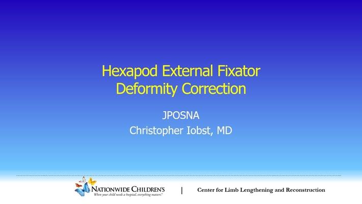 Hexapod External Fixator Deformity Correction