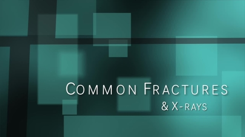 Thumbnail for entry Anatomy and Physiology Common Fractures
