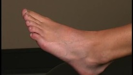 Thumbnail for entry ROM_foot_toe_mtp2-5_flexion