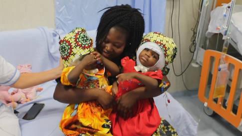 Erfolgreich: Siamesische Zwillinge in Rom getrennt