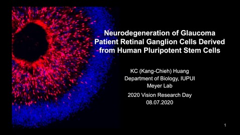 Thumbnail for entry Neurodegeneration of glaucoma patient retinal ganglion cells derived from human pluripotent stem cells