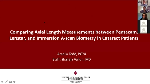 Thumbnail for entry Comparing axial length measurements between Pentacam, Lenstar, and immersion A-scan biometry in cataract patients