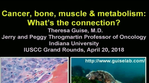 Thumbnail for entry  IUSCC  Grand Rounds , April 20, 2018- Theresa Guise, MD -