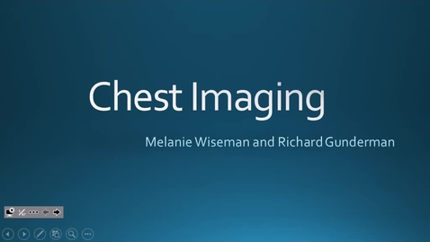 Thumbnail for entry Chest imaging, IUSM-FW, Dr. Rodriguez 2017 Oct 12 09:54:24