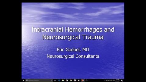 Thumbnail for entry Evv-N&B-Increased ICP, Hemorrhages, Trauma - Dr. Goebel - 2017 May 12 03:31:00