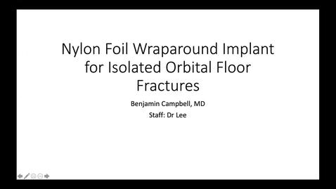 Thumbnail for entry Nylon foil wraparound implant for isolated orbital floor fractures