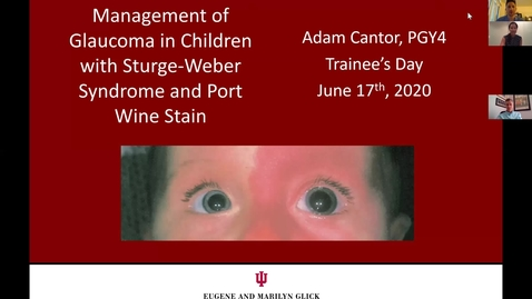 Thumbnail for entry Management of glaucoma in children with Sturge-Weber Syndrome and Port Wine Stain