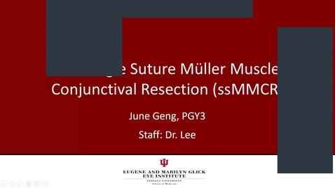 Thumbnail for entry Single suture Müller Muscle Conjunctival Resection (ssMMCR)