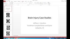 Thumbnail for entry WL - NB - Crecelius - Brain Injury Case Studies