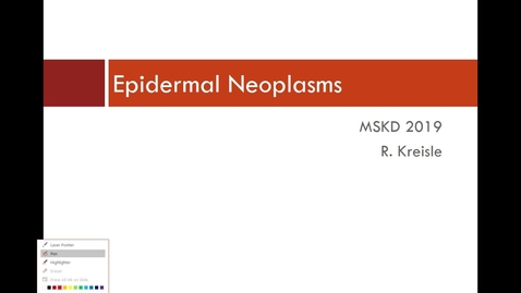 Thumbnail for entry IUSM WL MSKD Skin Neoplasias Kreisle 01/14/19