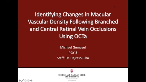 Thumbnail for entry Identifying changes in macular vascular density following branched and central retinal vein occlusions using OCTa