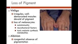 Thumbnail for entry IUSM WL MSKD Skin Tumors II Kreisle 011519