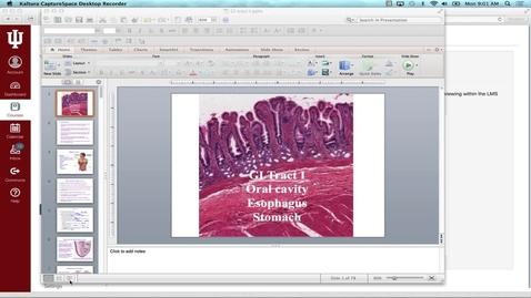 Thumbnail for entry SB GI Tract I 9-26-16