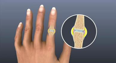 Rheumatoid Arthritis Symptoms And Causes Mayo Clinic