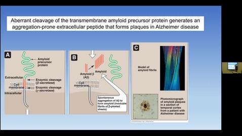 Thumbnail for entry 210810 - M1 - 10am - MBHD - Amino Acid Metabolism - Wattenberg