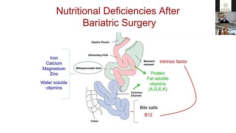 Thumbnail for entry 210331 - M1 - 10am - ENDO - Nutrition 1 - Kaspar
