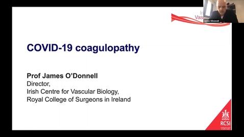 Thumbnail for entry Rochetalks- Laboratory Coagulation Webinar (2nd July 2020) COVID-19 Coagulopathy