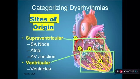 Thumbnail for entry Dysrhythmias Part 2