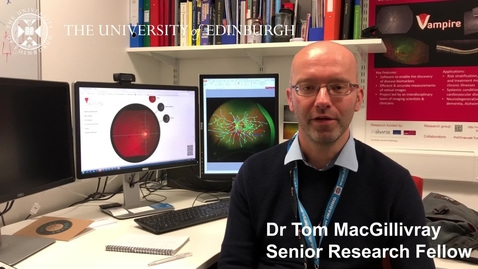 Thumbnail for entry Dr Tom MacGillivray - Research in a nutshell