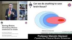 Thumbnail for entry Saving Brains: Developing Effective Treatments for Stroke