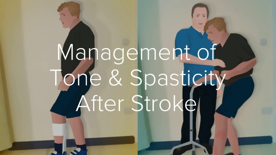 Management of Tone & Spasticity After Stroke: A Role for
