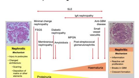 Thumbnail for entry The Spectrum of Glomerulonephritis