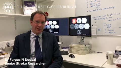 Thumbnail for entry Dr Fergus Doubal - Research in a nutshell