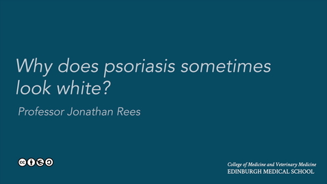 Thumbnail for entry Why does psoriasis sometimes look white?