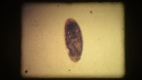 Thumbnail for entry Drosophila egg