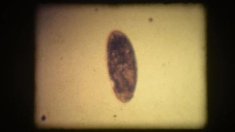 Thumbnail for entry Drosophila egg