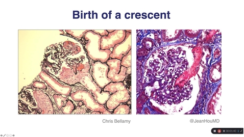 Thumbnail for entry Haematuric diseases and crescentic nephritis