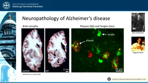 Thumbnail for entry 2. What is Neurodegenerative Disease? (part 2)
