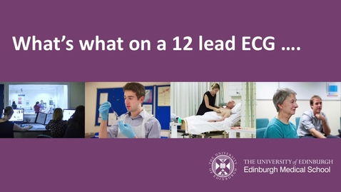 Thumbnail for entry What's what in a 12 lead ECG