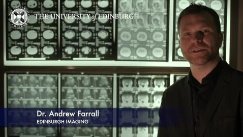 Thumbnail for entry Andrew Farrell - Edinburgh Imaging - Research In A Nutshell- Edinburgh Neuroscience-28/01/2013