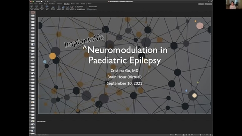 Thumbnail for entry Neuromodulation in Epilepsy, Dr. Cristina Go, September 10 2021