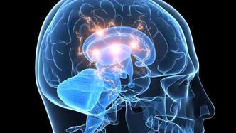 Cluster Headaches | Cleveland Clinic