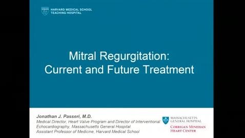 Mitral Regurgitation: Current and Future Treatment