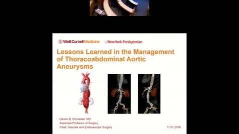 Thumbnail for entry Lessons Learned in the Management of Thoraco-abdominal Aortic Aneurysms
