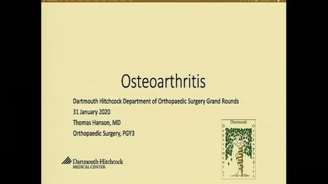 Thumbnail for entry Osteoarthritis