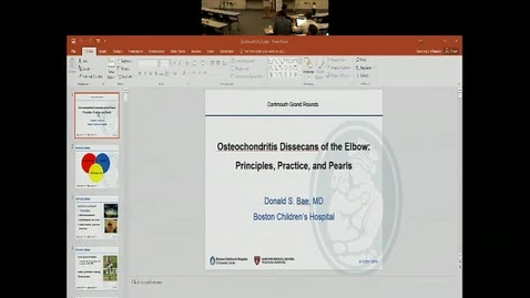 Thumbnail for entry Osteochondritis Dissecans of the Elbow:  Principles, Practice, and Pearls