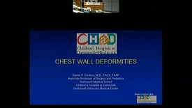 Thumbnail for entry Chest Wall Deformity